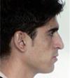 до операции Ринопластика (пластика носа)
